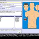 programa de acupuntura